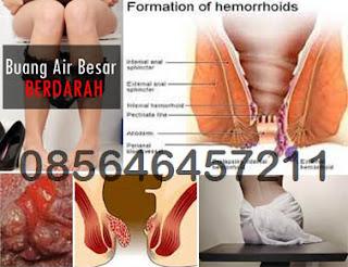 Penyakit Ambeien atau Hemoroid Sembuh Berapa Lama