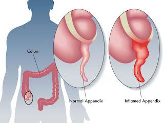 http://www.rashminursinghome.com/appendix-removal-surgery.html