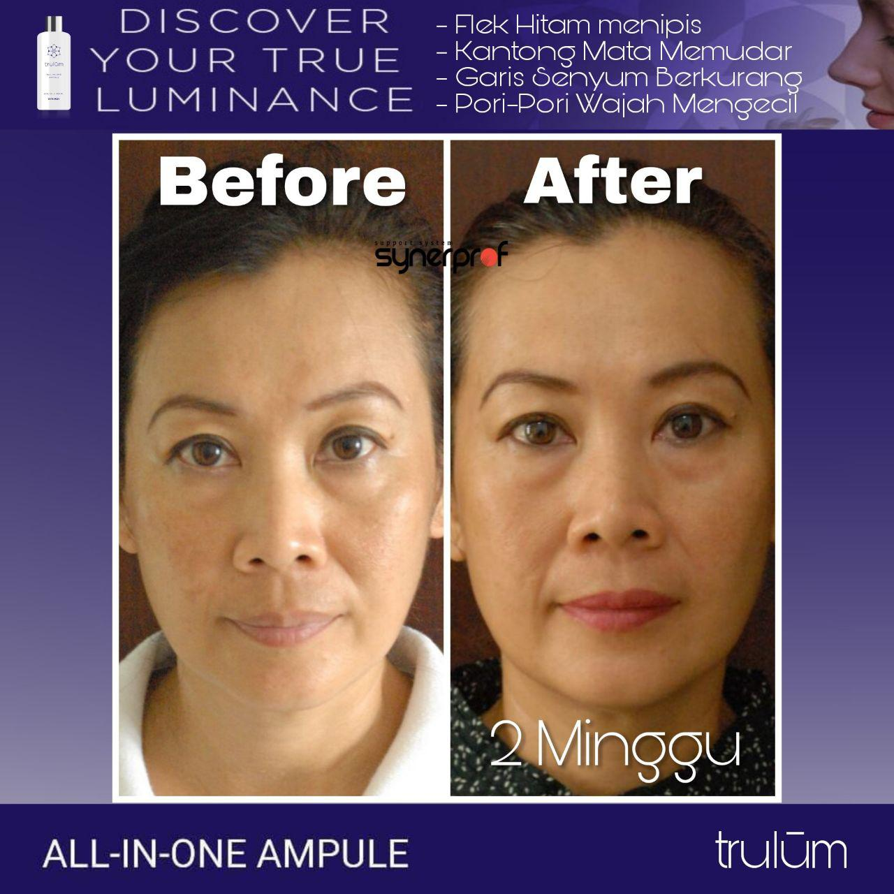 Jual Trulum All In One Ampoule Di Kadipaten WA: 08112338376