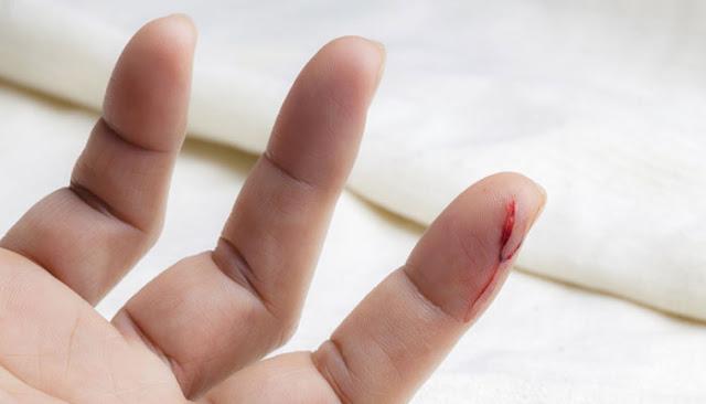 طريقة علاج الخدوش والجروح البسيطة بالأعشاب