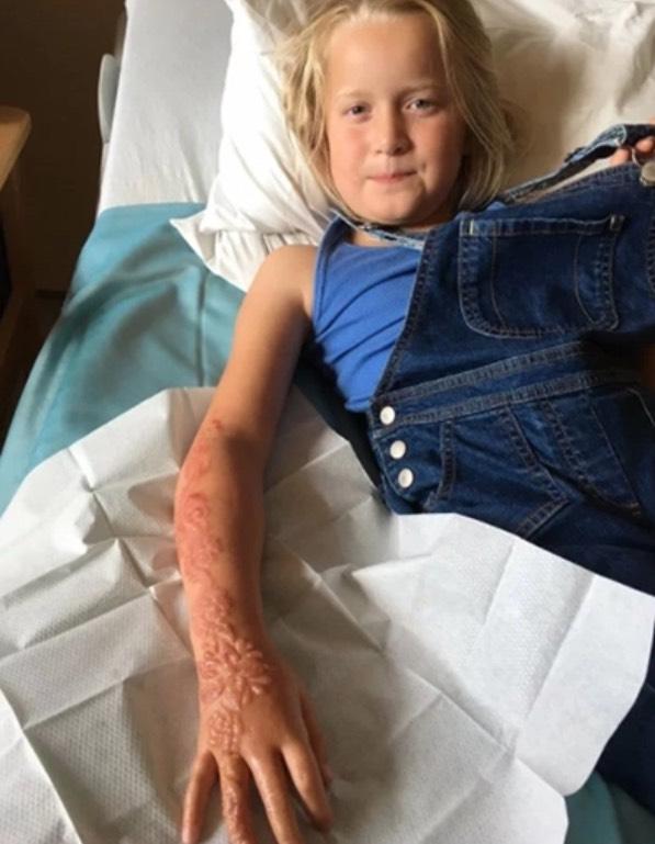 Budak Merana Dapat Parut Kekal Akibat Inai Henna Hitam