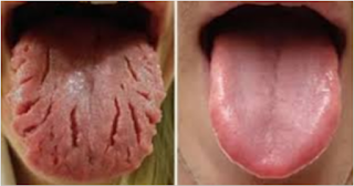Keep An Eye For These Nine Changes On Your Tongue, And Reveal Almost All Of Your Illnesses!