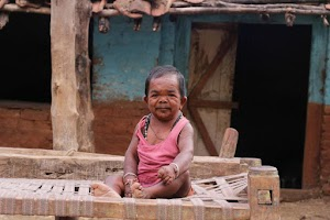 Check In To Read story about 50-year-old  Indian man who stopped growing at age 5 (Pics)
