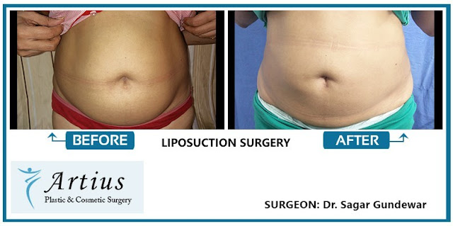Liposuction in Navi Mumbai