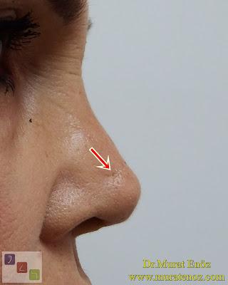 burun cildinde fistül, burun ucunda yabancı cisim reaksiyonu, kalıcı dikiş materyallerinin riskleri, kalıcı dikiş reaksiyonu, rinoplasti revizyonu