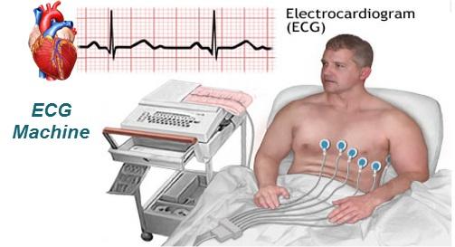 Cara Mengobati Penyakit Jantung Lemah Secara Efektif Dan Cepat Sampai Tuntas