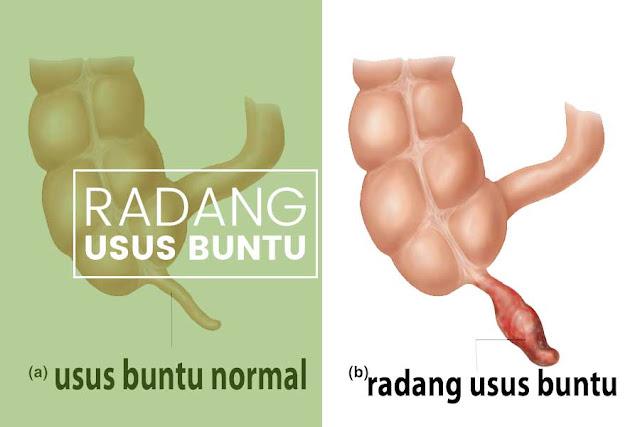 Gejala dan Penyebab Penyakit Usus Buntu
