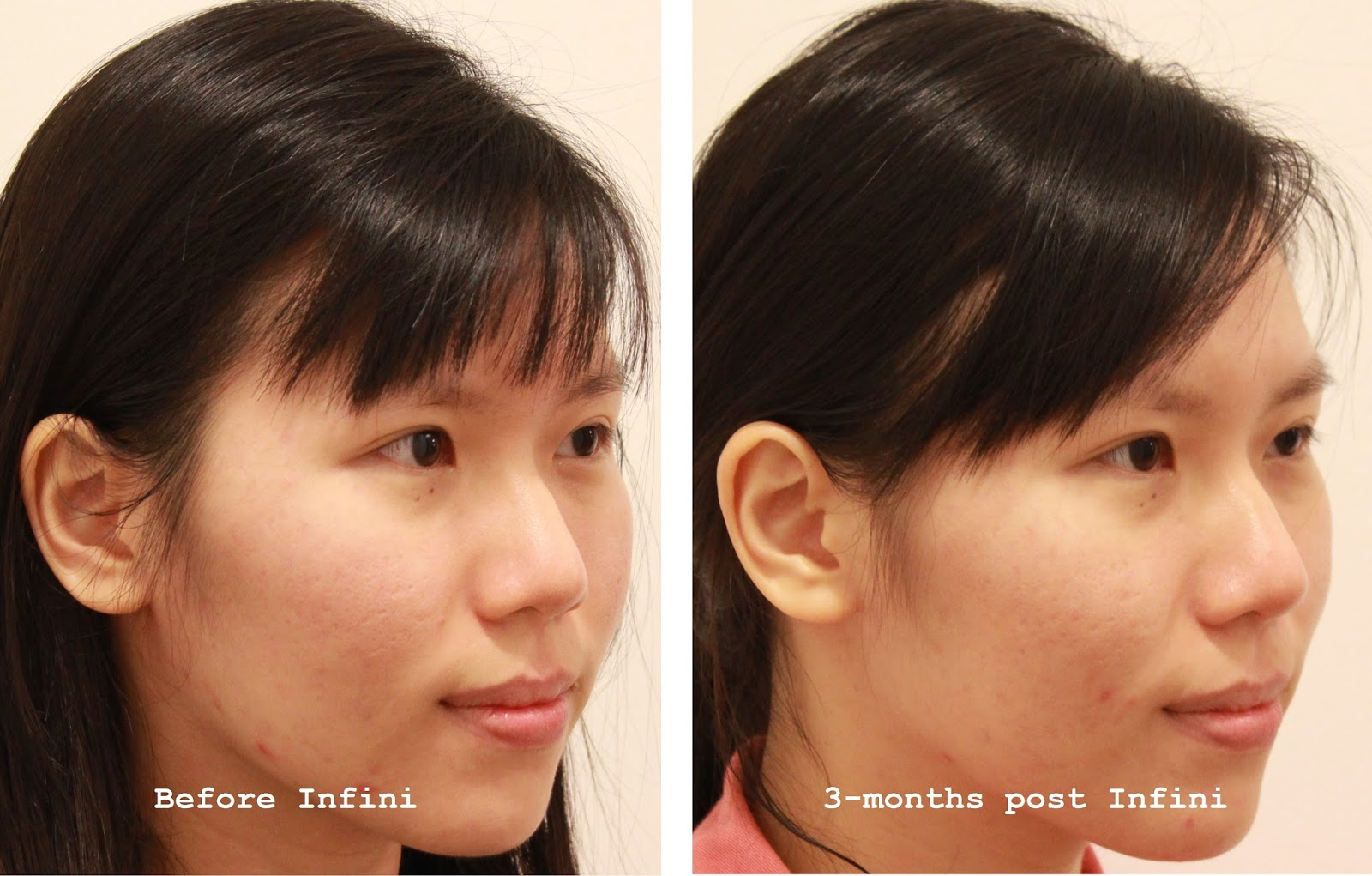 Treatment] Infini Fractional Radiofrequency for Depressed