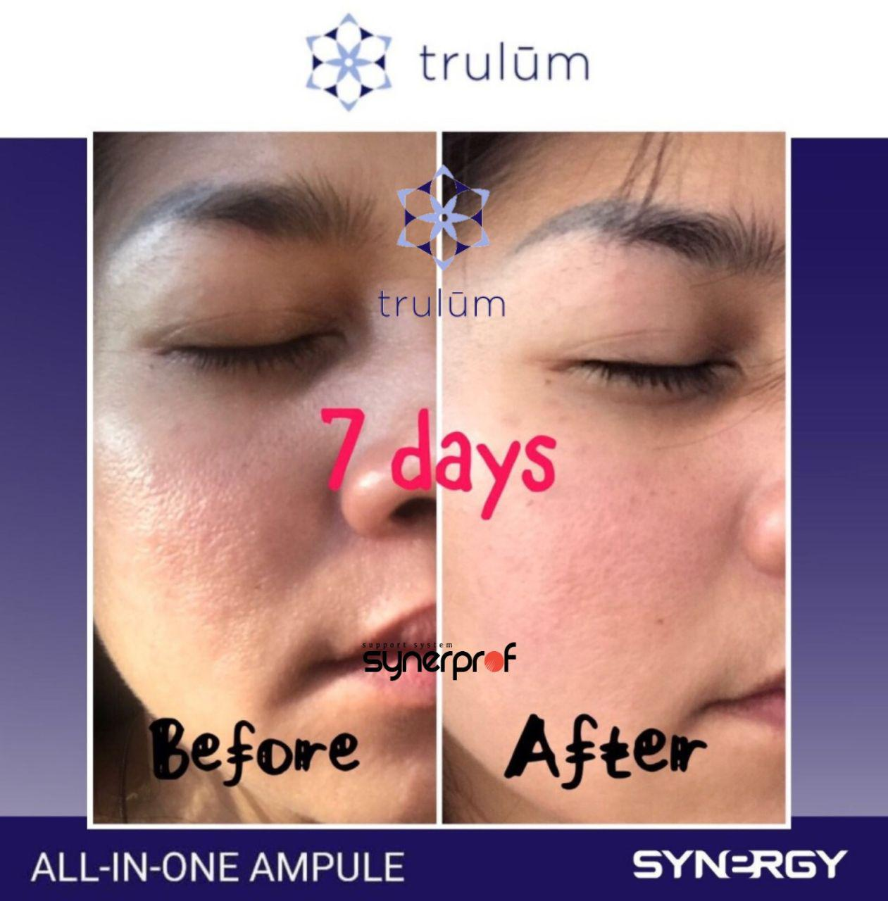 Jual Trulum All In One Ampoule Di Krian WA: 08112338376