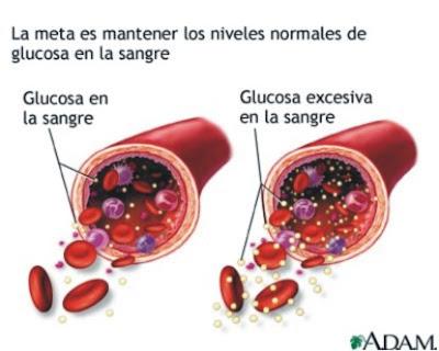 Definición diabetes