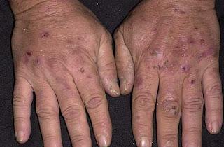Photo de mains d'une personne atteinte de porphyrie