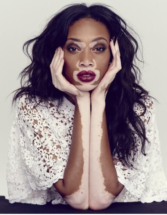 70bca3ff33ce Welcome To Nigerian Diaspora News Magazine  Fashion  Winnie Harlow ...