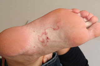 A winding snake-like rash on the patient's sole hookworm rash pictures