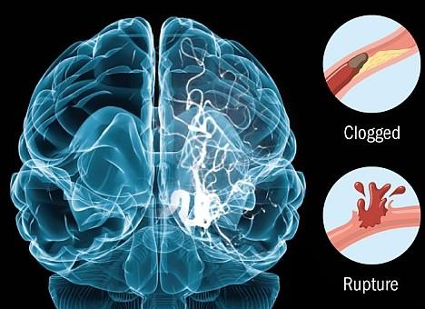 Obat stroke di apotik