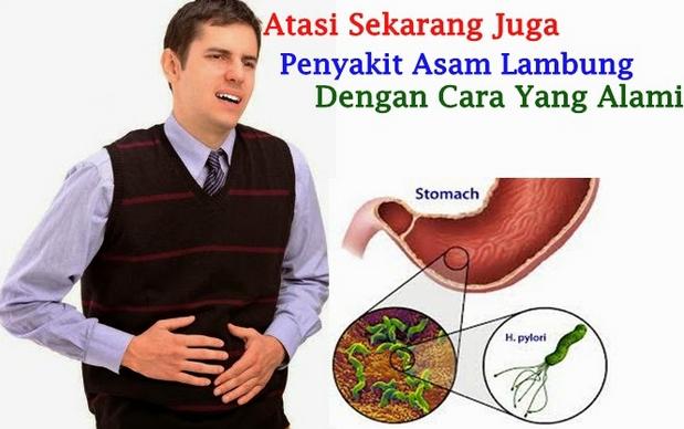 cara pengobatan bakteri lambung secara alami