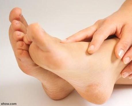 Kaki pecah-pecah akibat penggunaan sandal jepit terlalu lama