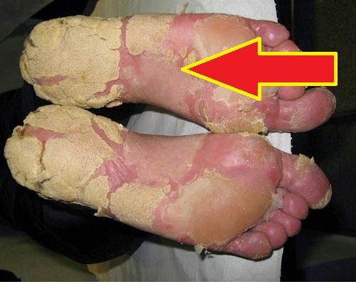 Remedios Caseros para la Psoriasis Plantar