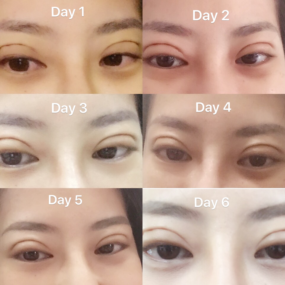Diana: Double eyelids Non-Incision Surgery - Part II