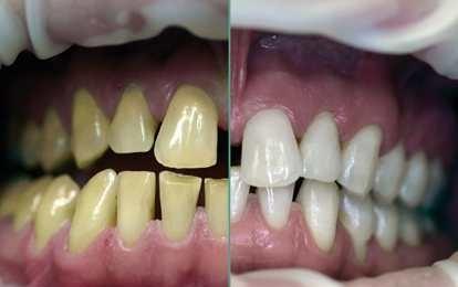 Putihkan Gigi Dalam Tiga Menit Anda Bisa Lakukan Sekarang