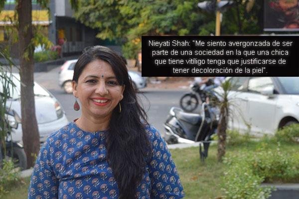 Nieyati Shah y su Historia con el Vitiligo