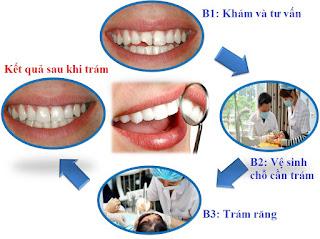 Quy trình trám răng sâu diễn ra như thế nào?