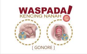 Harga Obat Kemaluan   Keluar Nanah Nyeri Disertai Testis Bengkak - WCS