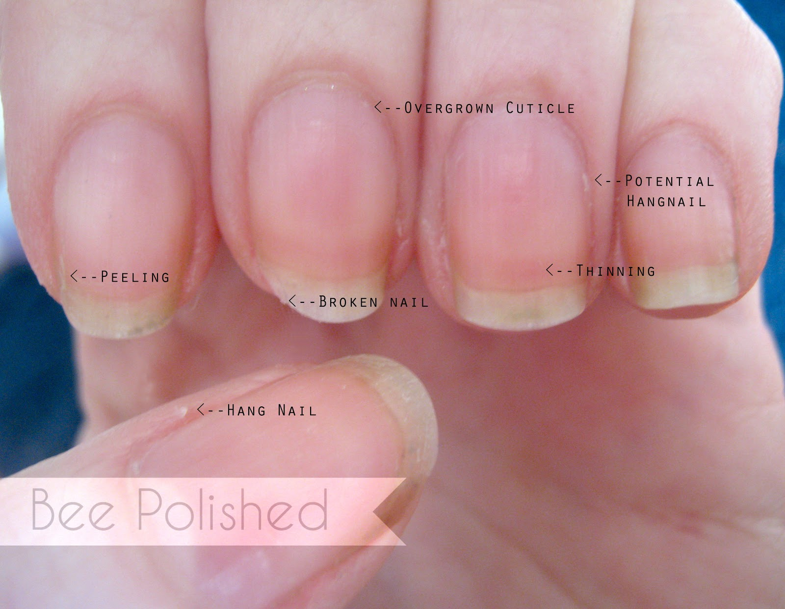Rehab Your Nails: Spa Manicure - Bee Polished