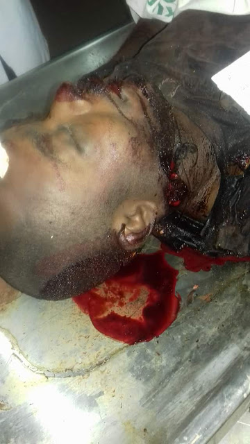 Photos: Many feared dead, scores injured as suspected Fulani herdsmen attack Benue community