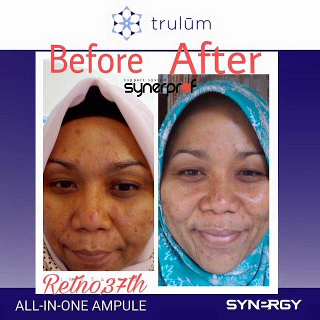 Bebas Bopeng Bekas Jerawat, Flek Hitam Tanpa Harus Laser Atau Ke Tempat Skin Care Di Sentani Timur Jayapura