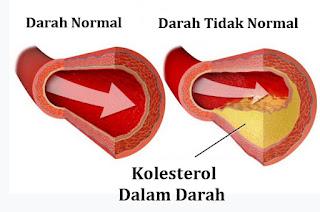Gambar Kolesterol Darah