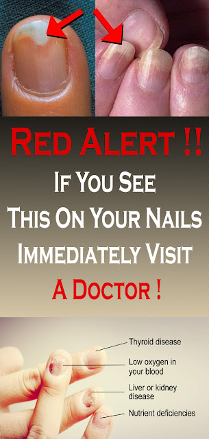 If You See This On Your Nails Immediately Visit A Doctor !