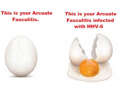 cartoon, hhv-6, arcuate fasculitis, infection, hhv-7,