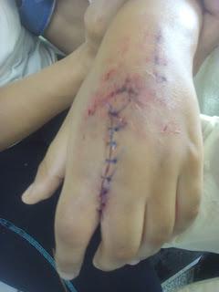 sutura de herida de mano