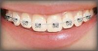 การจัดฟันแบบ Damon Brackets