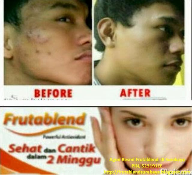 Agen Frutablend HWI Probolinggo