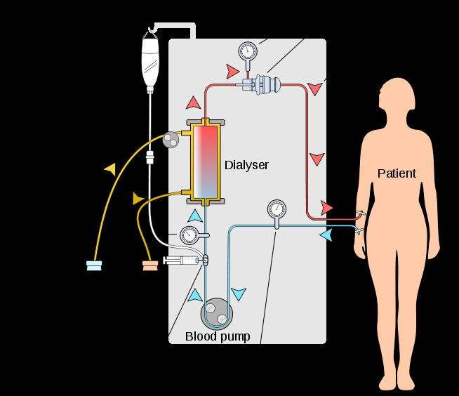 Hemodialisis-Cuci Darah