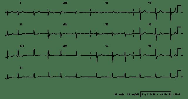Elektrokardiografi EKG Stenosis Mitral ECG Electrocardiograph