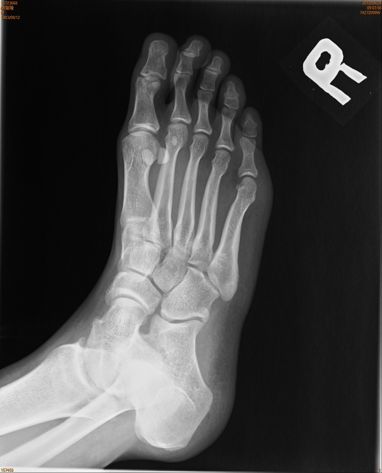 Download image N...Xray Of Childs Foot
