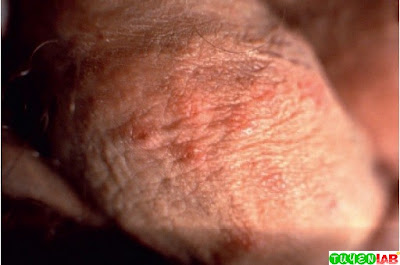 Vesicles of herpetic lesions on the penile shaft due to herpes simplex virus 2.