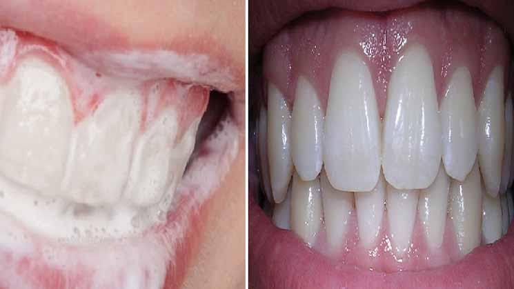 Oleskan Pada Gigi dan Diamkan Beberapa Menit, Maka Gigi Mu Akan Putih Bersih dan Bebas Bau Mulut Sepanjang Hari