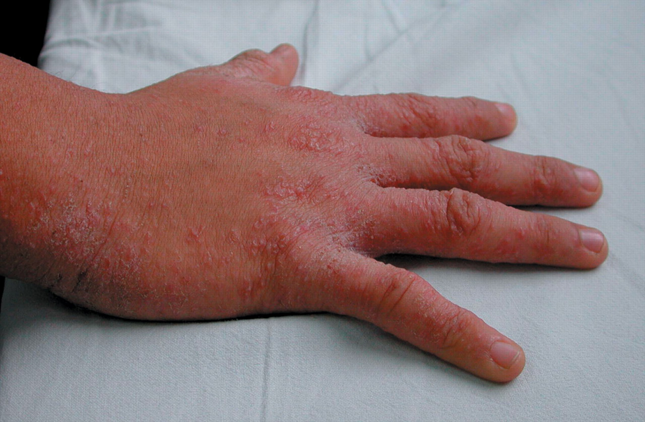 Natural Treatment - Scabies Cream: What is difference ...