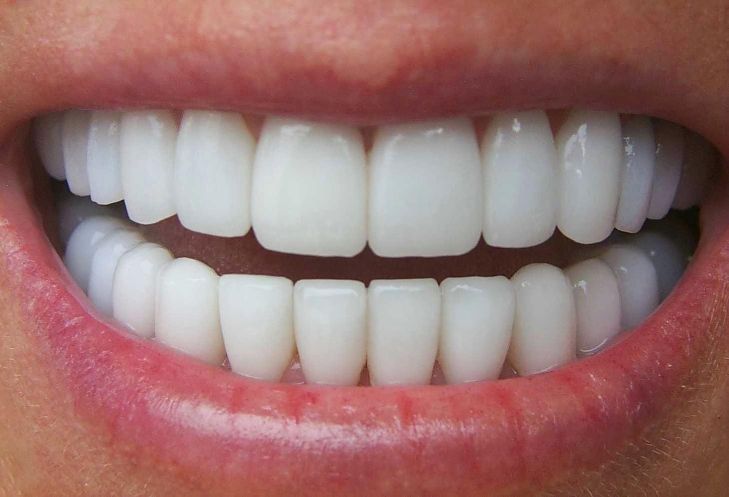 Kết quả hình ảnh cho khi bị mất đi một hoặc một vài chiếc răng