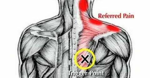 امراض العضلات علاج الابهر الوثاب الغولنج الم في الظهر والكتفين واليدين