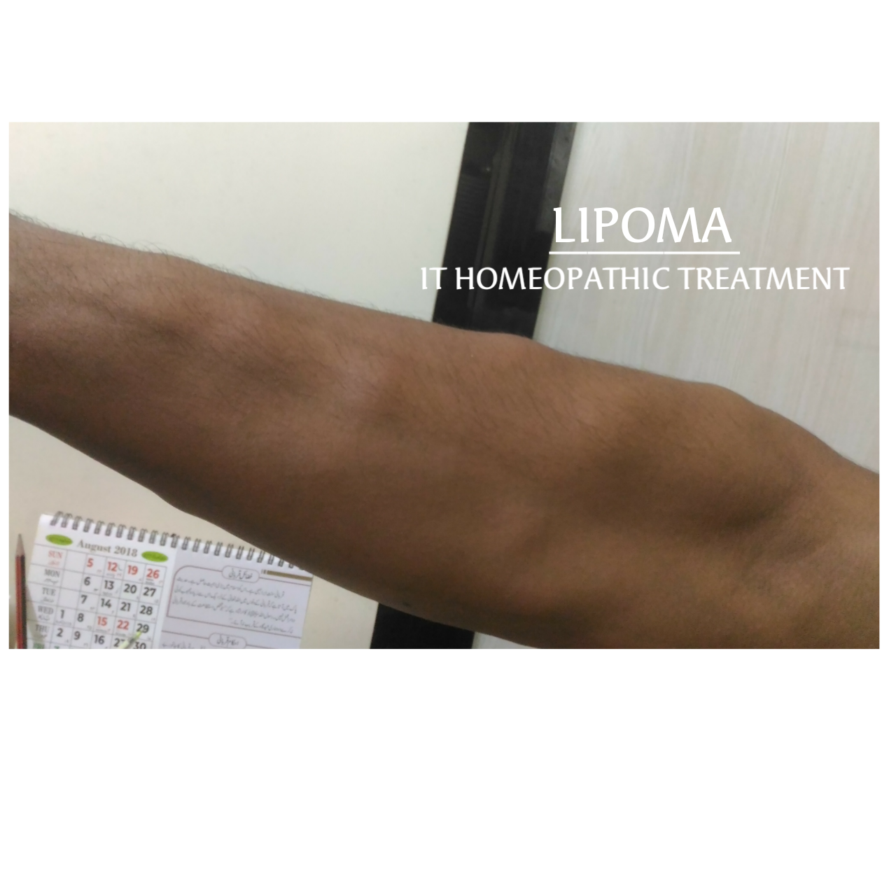 LIPOMA AND ITS HOMEOPATHIC REMEDIES - ALL ABOUT HOMEOPATHY