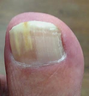 Nagelpilz-Symptome. Reinhard.G-hat seit drei Jahren Fußnagelpilz.