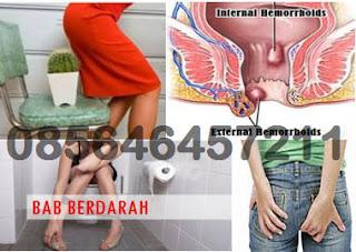 Obat (Wasir) Hemoroid Terpercaya