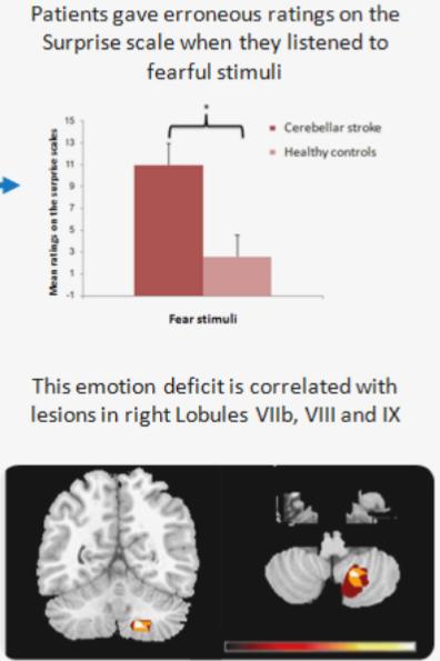 図:小脳の音声感情認識力