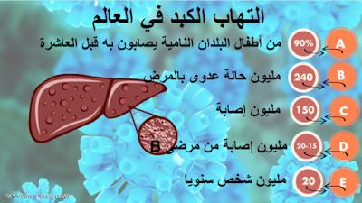إلتهابات الكبد -A-B-C-D-E