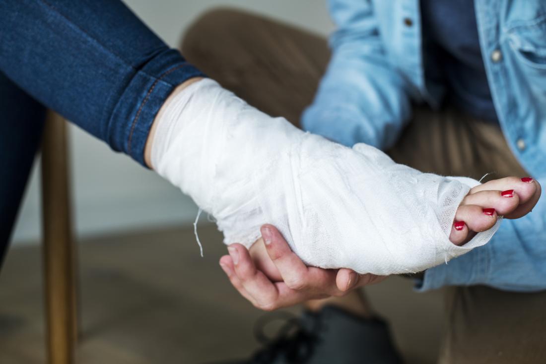 علاج تمزق اربطة القدم