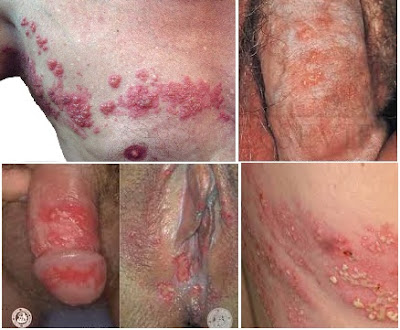 cara menyembuhkan penyakit herpes pada kelamin